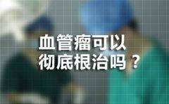 合肥哪个医院看胎记比较好?血管瘤能彻底根治吗?